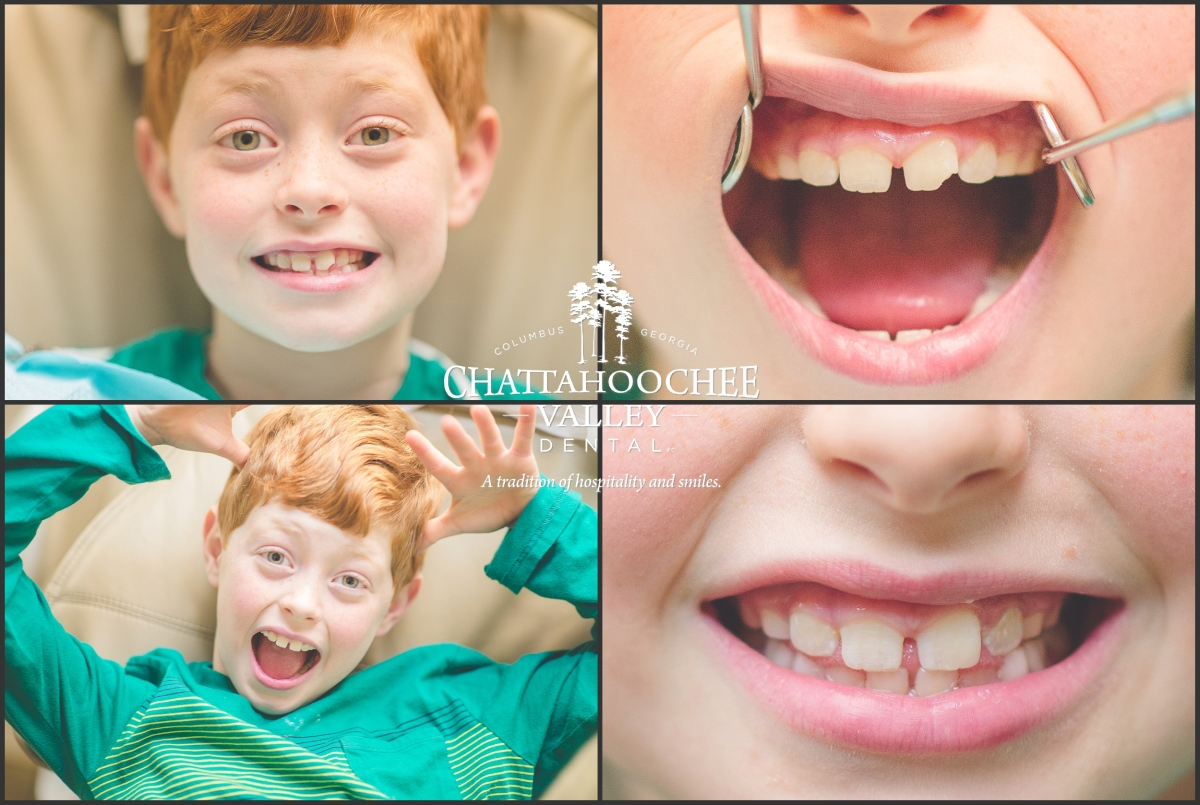 chattahoochee-valley-dental-traceable-takes